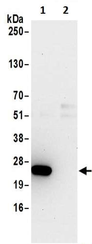 Immunoprecipitation - Anti-DTD1 antibody (ab200559)