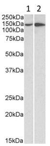 Western blot - Anti-Integrin alpha 1 antibody (ab200570)