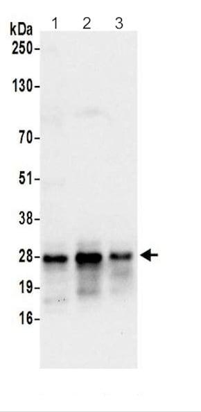 Western blot - Anti-HN1L/L11 antibody (ab200571)