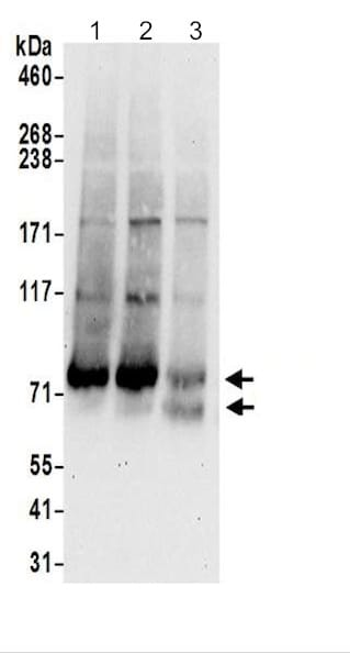 Western blot - Anti-DHHC-5 antibody (ab200572)