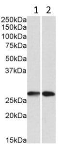 Western blot - Anti-NNMT antibody - N-terminal (ab200576)