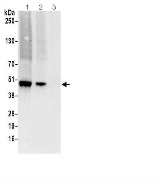Western blot - Anti-BCKDHA (phospho S293) antibody (ab200577)