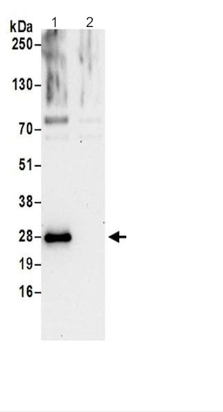 Immunoprecipitation - Anti-HN1L/L11 antibody (ab200587)