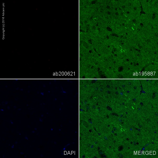 Immunohistochemistry (Formalin/PFA-fixed paraffin-embedded sections) - Rabbit monoclonal [H19-5] Anti-Human kappa light chain (Alexa Fluor® 647) (ab200621)