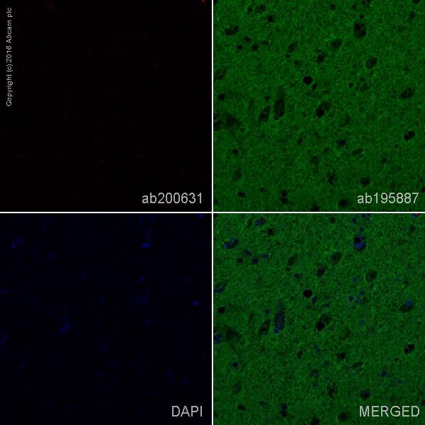 Immunohistochemistry (Formalin/PFA-fixed paraffin-embedded sections) - Alexa Fluor® 647 Anti-Human Kappa Chain antibody [EPR5539-71-8] (ab200631)