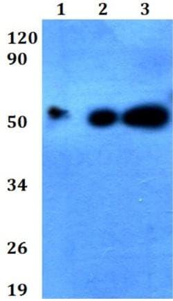 Western blot - Anti-DMRTA1 antibody (ab200640)