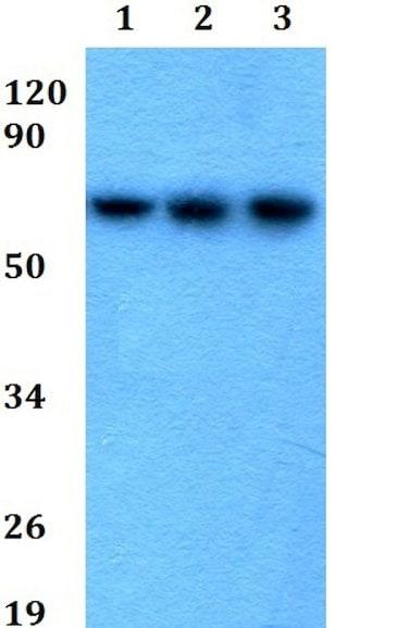 Western blot - Anti-GGT5 antibody (ab200647)