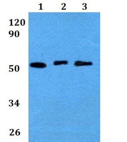 Western blot - Anti-Cathepsin F antibody (ab200650)