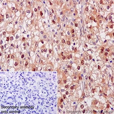 Immunohistochemistry (Formalin/PFA-fixed paraffin-embedded sections) - Anti-NCAPH2 antibody [EPR17170] (ab200659)
