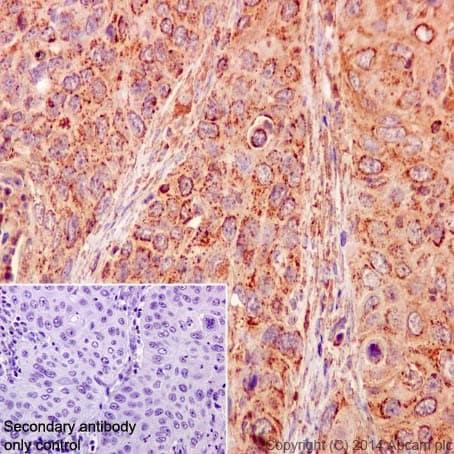 Immunohistochemistry (Formalin/PFA-fixed paraffin-embedded sections) - Anti-gamma Catenin antibody [EPR17310-48] (ab200661)