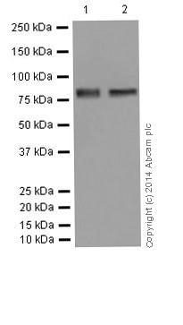 Western blot - Anti-gamma Catenin antibody [EPR17310-48] (ab200661)