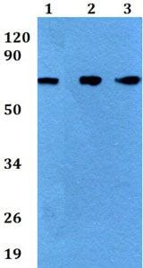 Western blot - Anti-BGT-1 antibody (ab200676)