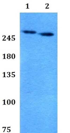 Western blot - Anti-Factor V antibody - N-terminal (ab200680)