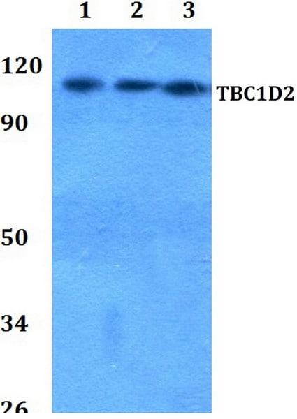 Western blot - Anti-TBC1D2 antibody (ab200692)