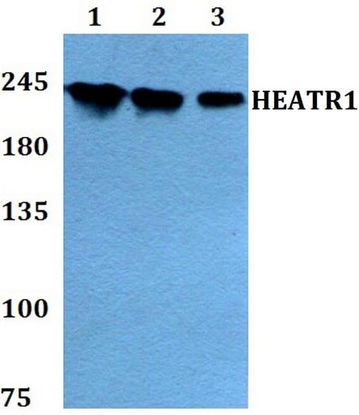 Western blot - Anti-HEATR1 antibody (ab200693)