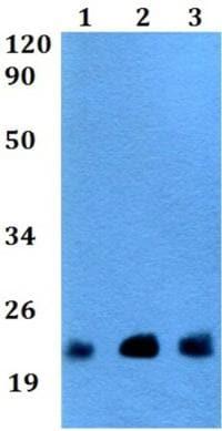 Western blot - Anti-TGIF2LY antibody (ab200716)