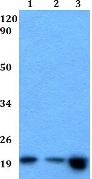 Western blot - Anti-MED28/EG1 antibody (ab200720)