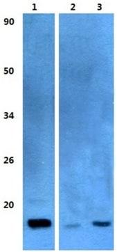 Western blot - Anti-TSC-1 antibody (ab200728)