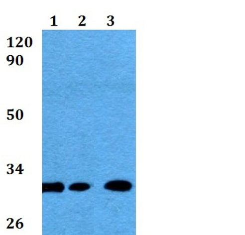 Western blot - Anti-HLA-DQB1+B2 antibody (ab200733)