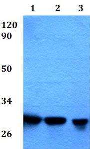 Western blot - Anti-RPA4 antibody - C-terminal (ab200742)