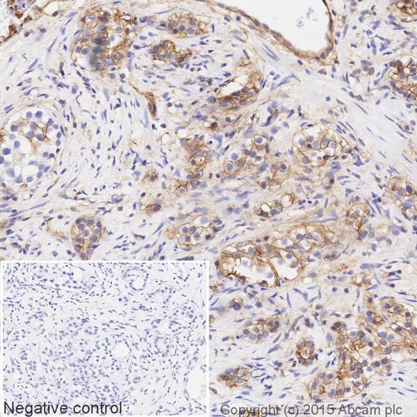 Immunohistochemistry (Formalin/PFA-fixed paraffin-embedded sections) - Anti-Annexin-2/ANXA2 antibody [EPR13052(B)] (HRP) (ab200798)