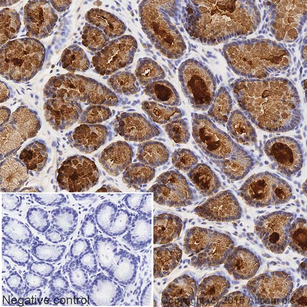 Immunohistochemistry (Formalin/PFA-fixed paraffin-embedded sections) - Anti-Estrogen Inducible Protein pS2 antibody [EPR3972] (HRP) (ab200801)