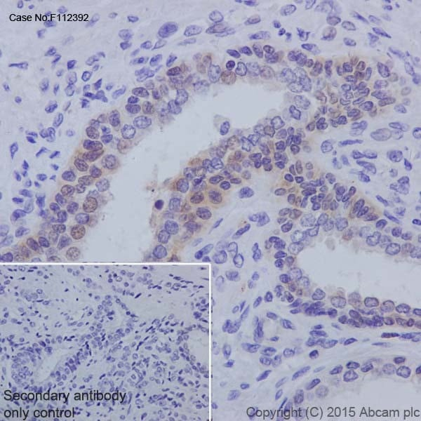Immunohistochemistry (Formalin/PFA-fixed paraffin-embedded sections) - Anti-Androgen receptor variant 5,6,7es antibody [EPR15657] (ab200827)