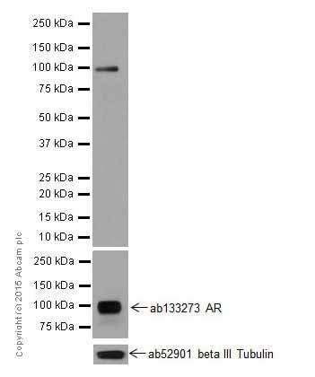 Western blot - Anti-Androgen receptor variant 5,6,7es antibody [EPR15657] (ab200827)