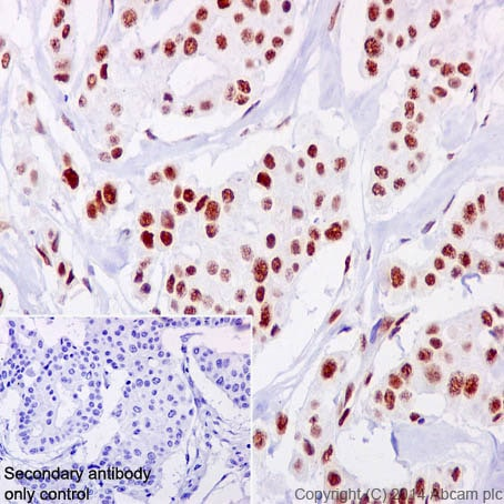 Immunohistochemistry (Formalin/PFA-fixed paraffin-embedded sections) - Anti-NFIB / NF1B2 + NFIC / CTF antibody [EPR14504] (ab200829)