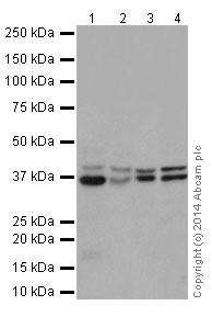 Western blot - Anti-PCBP2/hnRNP E2 antibody [EPR14859(2)] (ab200835)