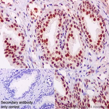 Immunohistochemistry (Formalin/PFA-fixed paraffin-embedded sections) - Anti-PHAPI2 / APRIL antibody [EPR14588] (ab200836)