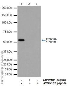Western blot - Anti-ATP6V1B1 + ATP6V1B2 antibody [EPR16401] (ab200839)