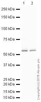 Western blot - Anti-GBA antibody [EPR5142] (HRP) (ab200856)