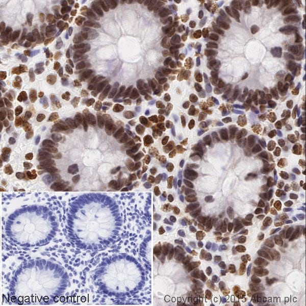 Immunohistochemistry (Formalin/PFA-fixed paraffin-embedded sections) - HRP Anti-Histone H4 (acetyl K16) antibody [EPR1004] (ab200859)
