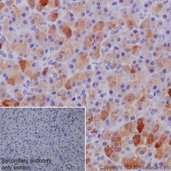 Immunohistochemistry (Formalin/PFA-fixed paraffin-embedded sections) - Anti-PRSS1 antibody [EPR19497] (ab200996)