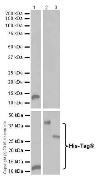 Western blot - Anti-PRSS1 antibody [EPR19497] (ab200996)