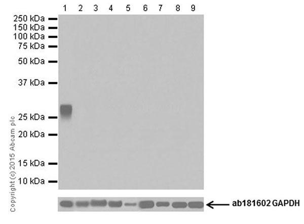 Western blot - Anti-Trypsin antibody [EPR19498] (ab200997)