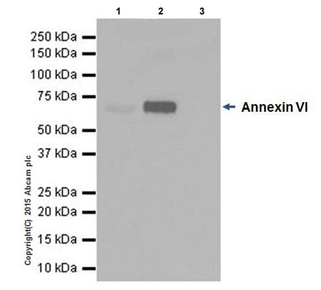 Immunoprecipitation - Anti-Annexin-6/ANXA6 antibody [EPR19517] (ab201023)