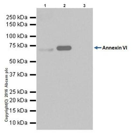 Immunoprecipitation - Anti-Annexin-6/ANXA6 antibody [EPR19536] (ab201024)