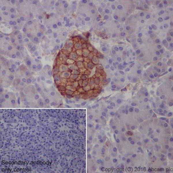 Immunohistochemistry (Formalin/PFA-fixed paraffin-embedded sections) - Anti-Annexin-6/ANXA6 antibody [EPR19536] (ab201024)