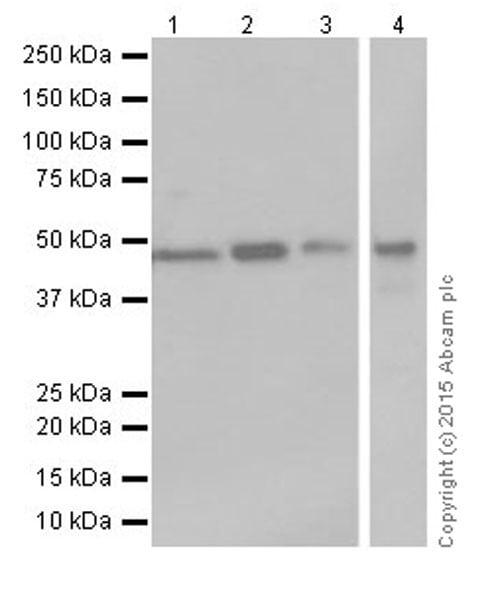 Western blot - Anti-Argininosuccinate Lyase antibody [EPR19382] (ab201025)