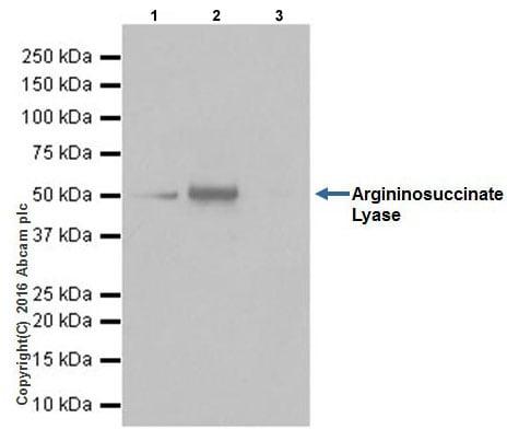 Immunoprecipitation - Anti-Argininosuccinate Lyase antibody [EPR19396] (ab201026)