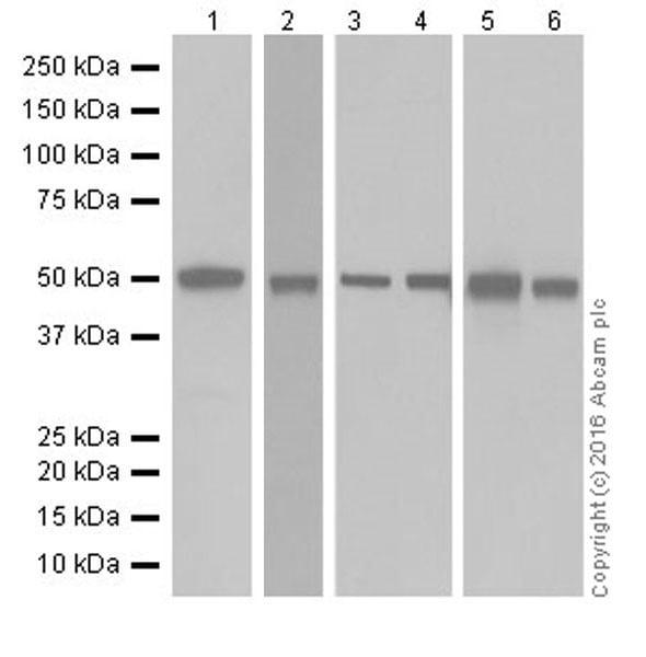 Western blot - Anti-Argininosuccinate Lyase antibody [EPR19396] (ab201026)