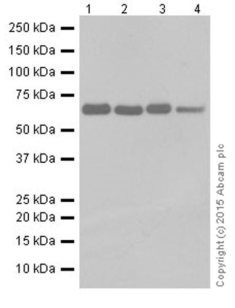 Western blot - Anti-HCE antibody [EPR19384] (ab201046)