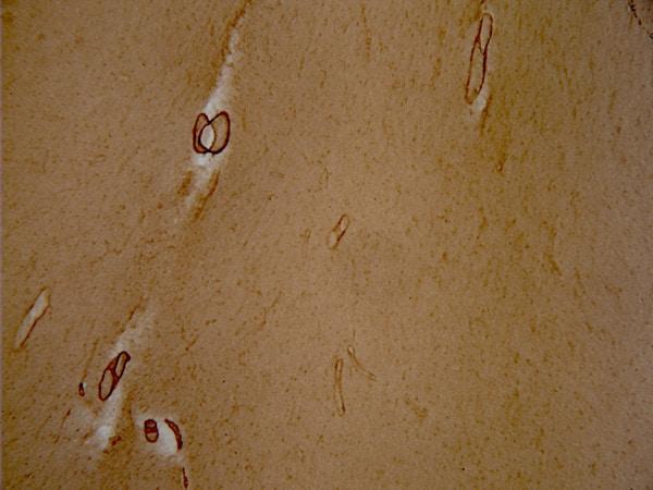 Immunohistochemistry - Free Floating - Anti-vascular Amyloid 1-42 antibody [mOC31] - Conformation-Specific (ab201059)