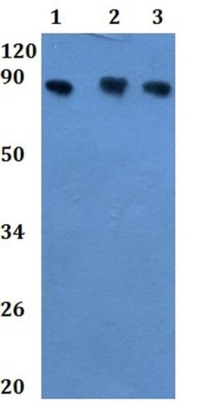 Western blot - Anti-CPXM2 antibody (ab201077)
