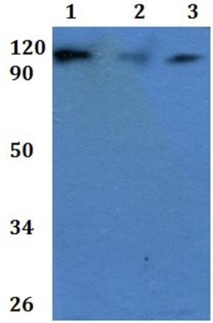 Western blot - Anti-CD101 antibody (ab201084)