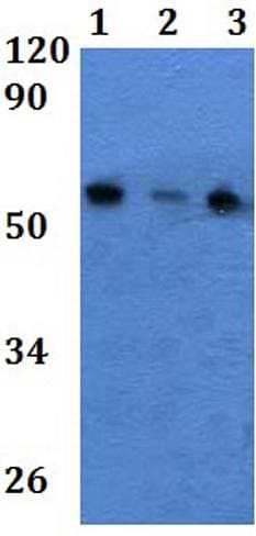 Western blot - Anti-Iroquois homeobox protein 3/IRX3 antibody (ab201097)