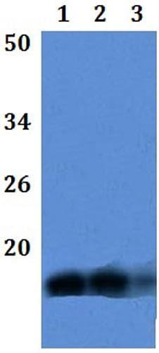 Western blot - Anti-LY6E/SCA-2 antibody (ab201098)