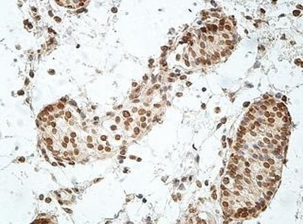 Immunohistochemistry (Formalin/PFA-fixed paraffin-embedded sections) - Anti-GCM2 antibody (ab201170)